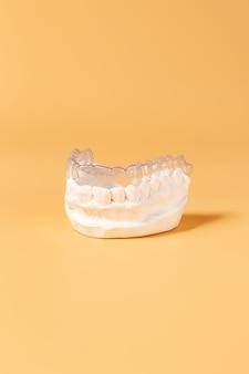 Nahaufnahme individueller zahnschale kieferorthopädisches zahnthema. in der hand unsichtbare zahnspangen