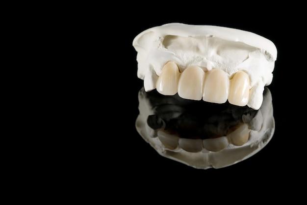 Nahaufnahme / prothetik oder prothetik / zahnkrone und brückenimplantat zahnmedizin geräte und modell express fix restauration.