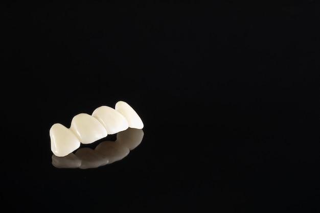 Nahaufnahme / prothetik oder prothetik / zahnkronen- und brückenimplantationsausrüstung und modellexpress-fix-restauration.