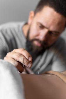 Nahaufnahme-therapeut, der akupunkturnadel hält