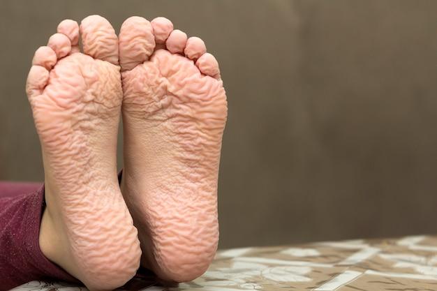 Nahaufnahme von kindern knitterte füße nach langem bad
