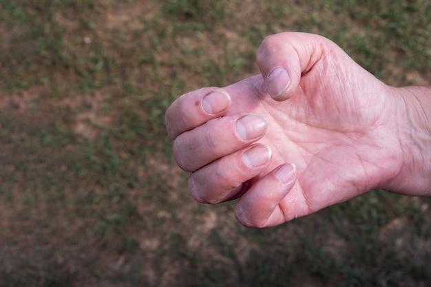 Nahaufnahme von kurzen schmutzigen nägeln, kaukasische weibliche senioren hand auf natürlichem hintergrund. problematische nägel, unbehandelte naturnägel, weibliche maniküre.
