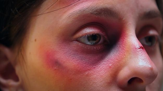 Nahaufnahme von missbrauchten frauengesicht mit prellung. traumatisierter hit verängstigte hilflose, verletzliche, geschlagene ehefrau, die von einem alkoholischen gewalttätigen brutalen ehemann verletzt wurde.