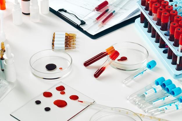 Nahaufnahme von reagenzgläsern vereinbarte auf einer tabelle im medizinischen labor