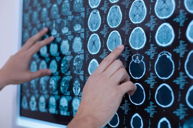 Nahaufnahme von röntgenbildern des menschlichen gehirns, die von einem netten professionellen onkologen auf das whiteboard gelegt werden