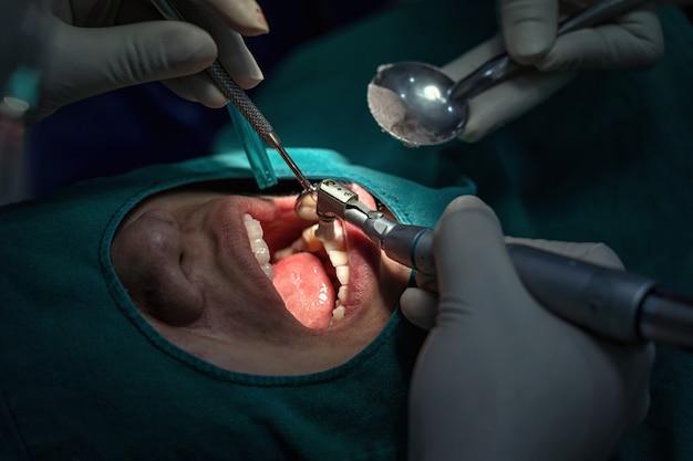 Nahaufnahme-zahnarzt und assistent, die für die prüfung und zahnreinigung an der zahnmedizinischen klinik funktionieren