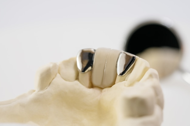 Nahaufnahme / zahnmedizinische maryland-brücke / kronen- und brückenausrüstung und eilverlegenheitsrestaurierung des modells.