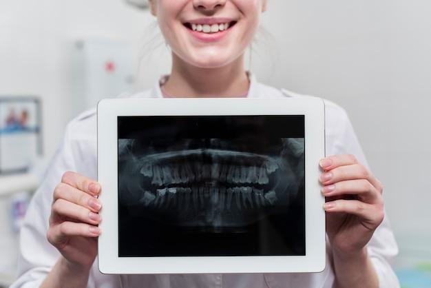 Nahaufnahmefrau, die zahnröntgenstrahl hält