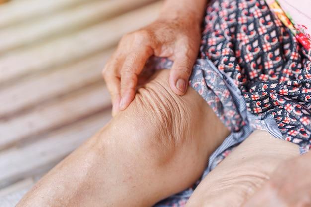 Nahaufnahmehand einer älteren frau, die ein knie mit einer verletzung aufgrund von arthritis massiert
