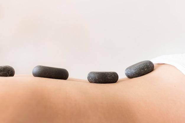 Nahaufnahmekunde mit spa-steinen