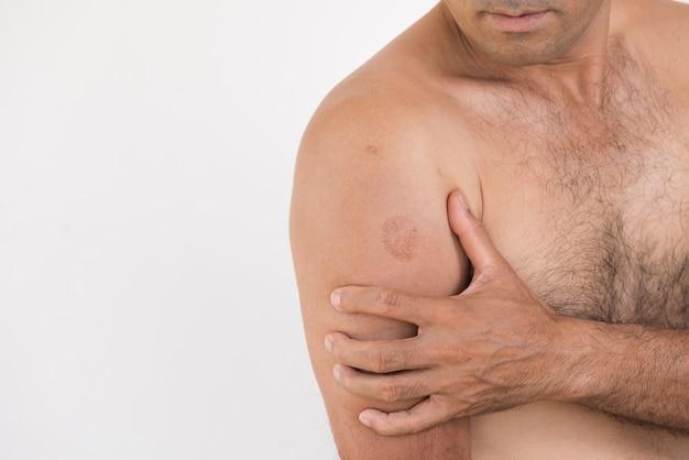Nahaufnahmemann ellbogen- und armschmerz und -verletzung auf weißem hintergrund.