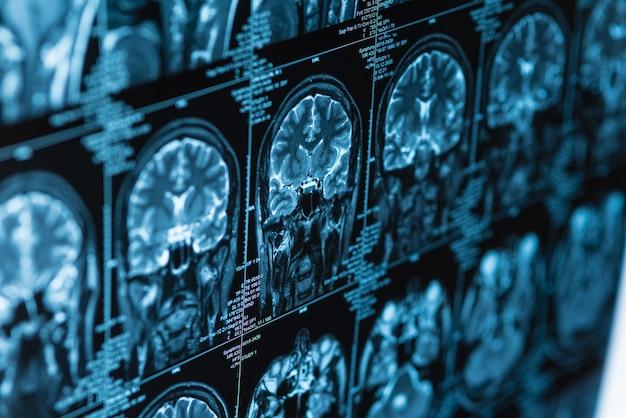 Nahaufnahmeserie von mrt-bildern von kopf und gehirn, magnetresonanztomographie, weltkrebstag-konzept