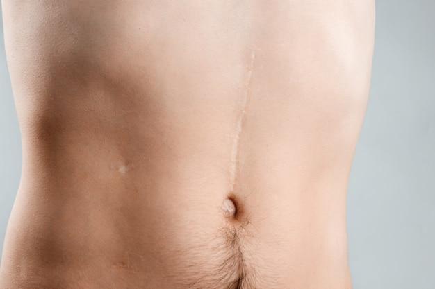 Narbenabbaukonzept, große narbe nach chirurgie auf dem jungen mann des unterleibs