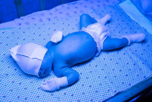 Neugeborene mit einer behandlung gegen gelbsucht unter ultraviolettem licht, baby hat einen hohen bilirubinspiegel und liegt unter blauem licht, um gelbsucht zu reduzieren. sichere medizinische verfahren