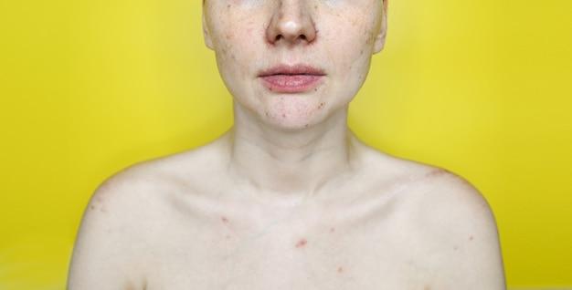 Nicht erkennbare frau mit einem problem gefäßhaut gelbe wand. akne-behandlung. weibliches gesicht mit pickeln, couperose oder rosacea nahaufnahme. kosmetik- und hautpflegekonzept.