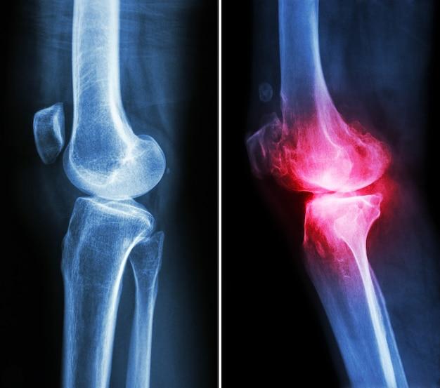 Normales knie und osteoarthritis knie