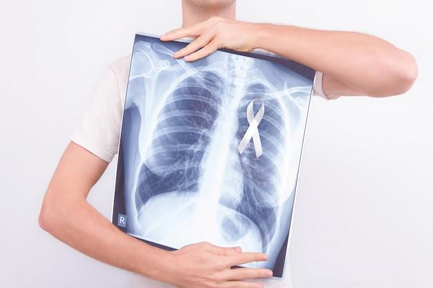 Onkologisches lungenkrebs-krankheitskonzept. männlicher mann des kerls, der medizinisches lungenkörper-röntgenstrahlfoto mit festgestecktem weißem band als symbol des lungenkrebses hält
