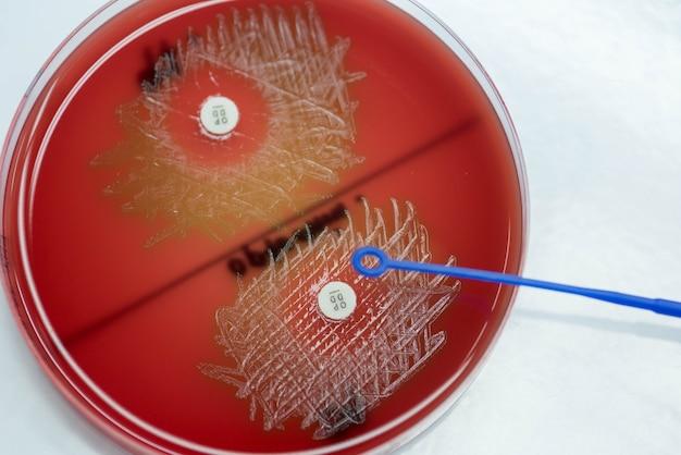 Optochin-subsensitivitätstest auf blutagarplatte enthält für streptococcus pneumoniae.