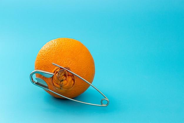 Orange mit einem großen bauchnabel und einer sicherheitsnadel auf einem blauen hintergrund. das konzept der schmerzen aufgrund von hämorrhoiden.