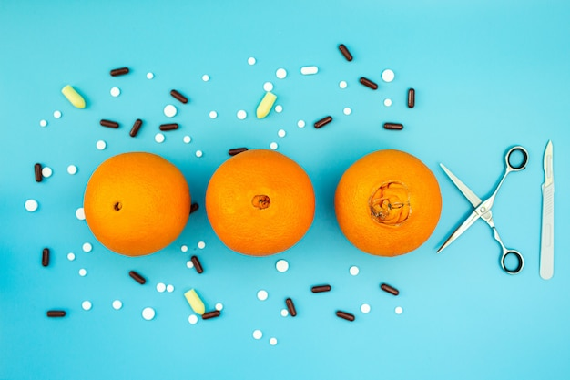 Orangen mit einem großen nabel, pillen, skalpell und schere auf einem blauen hintergrund. konzept der verschiedenen stadien von hämorrhoiden. chirurgische behandlung von hämorrhoiden.