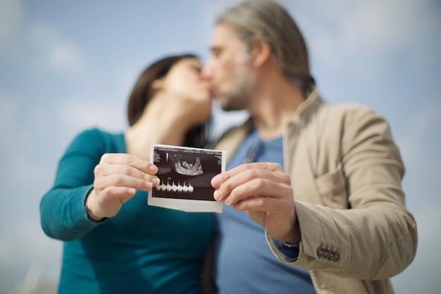 Paar kündigt schwangerschaft mit ultraschall an