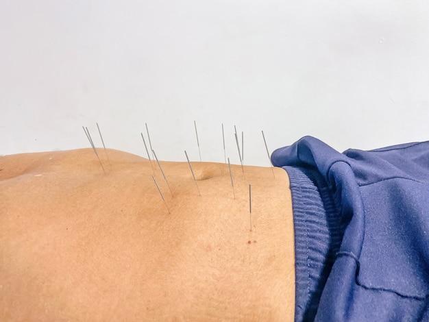 Patienten, die sich einer akupunktur am körper im hostipal und in der klinik unterziehen