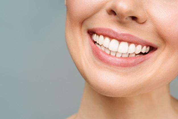 Perfektes gesundes zahnlächeln einer jungen frau, die das zahnpflegekonzept der stomatologie aufhellt