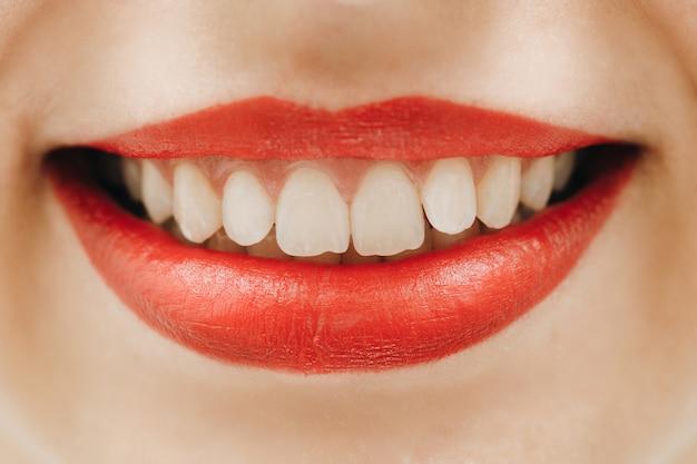 Perfektes lächeln nach dem bleichen. zahnpflege und zahnaufhellung.