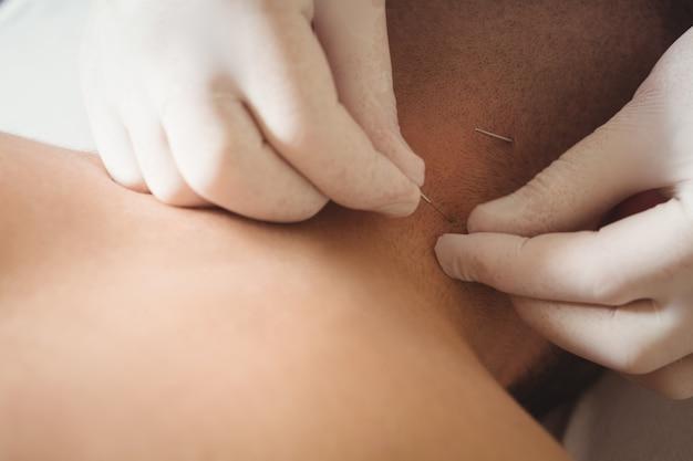 Physiotherapeut, der eine trockennadelung am hals eines patienten durchführt