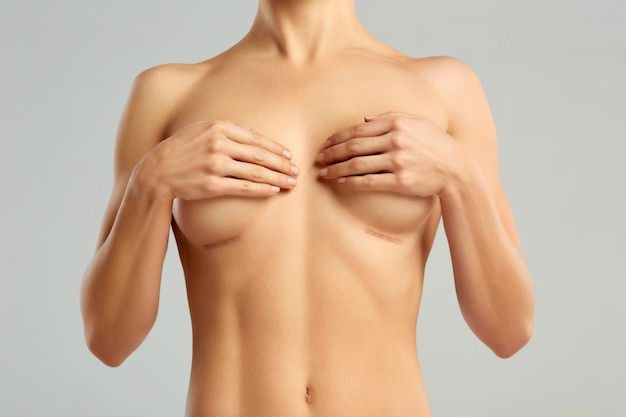 Plastische chirurgie der weiblichen brust