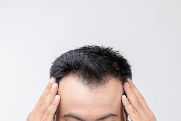 Porträt asiatischer mann mit sorgengefühl und berührung auf seinem kopf, um glatze oder kahles problem zu zeigen. studioaufnahme mit kopierraum mit grauer wand