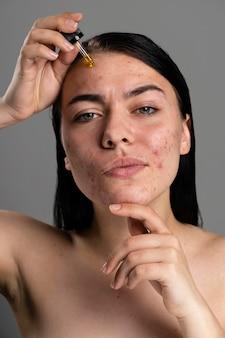 Porträt der jungen frau, die mit akne zuversichtlich ist