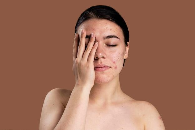 Porträt der jungen frau, die mit ihrer akne zuversichtlich ist