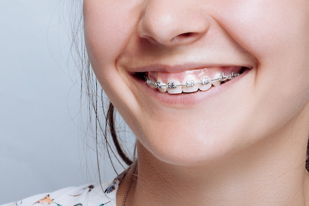 Porträt der jungen frau mit zahnspangen