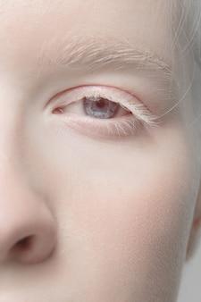 Porträt der schönen albino-frau auf studiohintergrund isoliert hautnah. . einzelheiten.