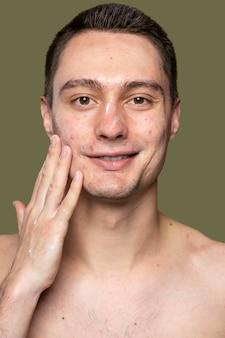 Porträt des jungen mannes, der mit akne zuversichtlich ist