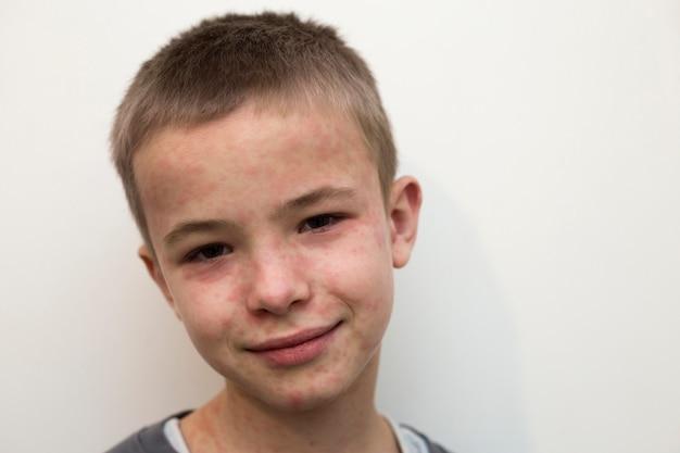 Porträt des kranken lächelnden jungenkindes, das unter masern oder windpocken mit stößen ganz über gesicht leidet
