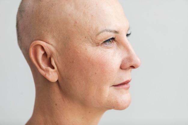Porträt einer frau mit hautkrebs