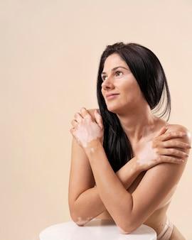 Porträt einer selbstbewussten frau mit vitiligo