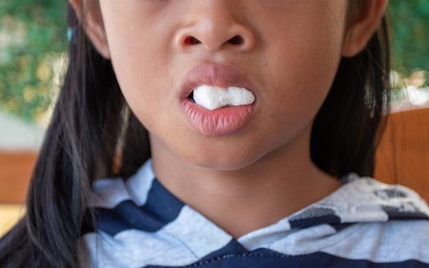 Postzahnärztliches mädchen an der zahnmedizinischen klinik mit gaze am mund