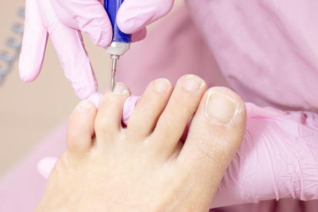 Professionelle hardware-pediküre mit einer elektrischen maschine. patient bei der pediküre. polieren der nagelplatte, bearbeiten der nagelhaut mit einer pediküre-maschine.