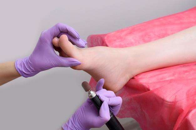 Prozess der fußhautbehandlung. behandschuhte hände mit einem pediküregerät. nahansicht
