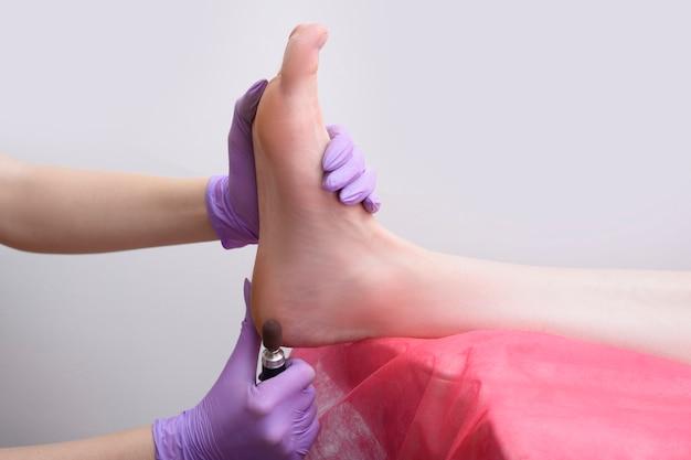 Prozess der fußhautbehandlung. behandschuhte hände mit einem pediküregerät