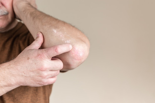 Psoriasis am ellenbogen. nahaufnahme dermatitis auf haut krank allergische hautausschlag dermatitis ekzem des patienten atopische dermatitis symptom haut detail textur, pilz konzept dermatologie, behandlung pilz und pilz