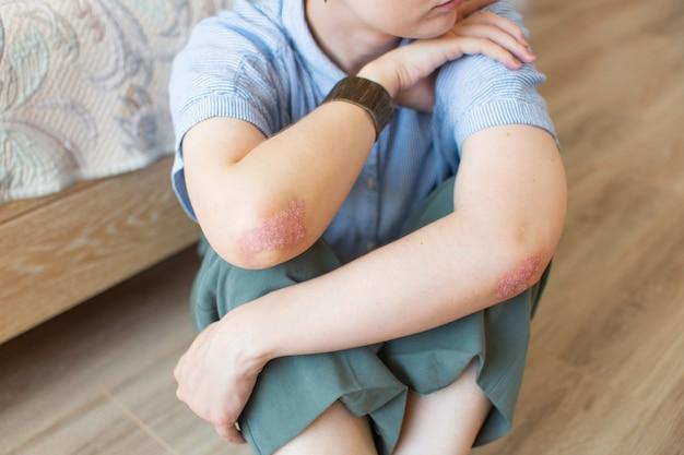 Psoriasis eines jungen mädchens auf den ellbogen, das auf dem schlafzimmerboden sitzt konzeptdermatologie