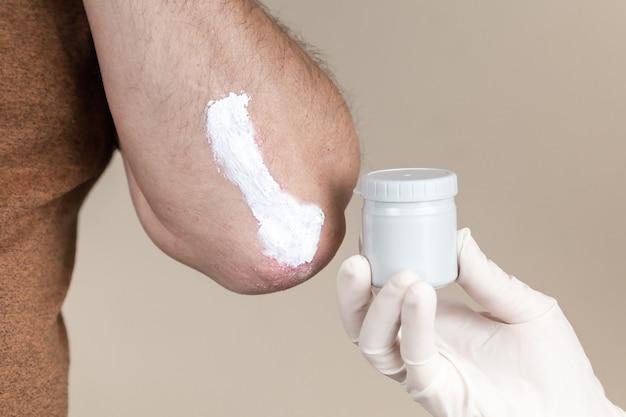 Psoriasis-salbe. ein dermatologe in handschuhen trägt eine therapeutische salbe auf die betroffene haut eines patienten mit psoriasis auf. behandlung von chronischen dermatosen, ekzemen, dermatitis