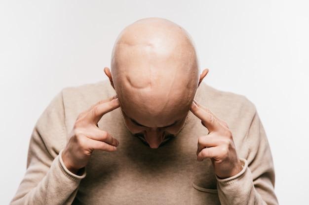 Psychischer druck des kahlen mannes, der um leben arter-hirntumor kämpft. herzzerreißende männliche gefühle nach krebsneurochirurgieoperation. überlebender patient der onkologie. chemotherapie und bestrahlungskopfspuren