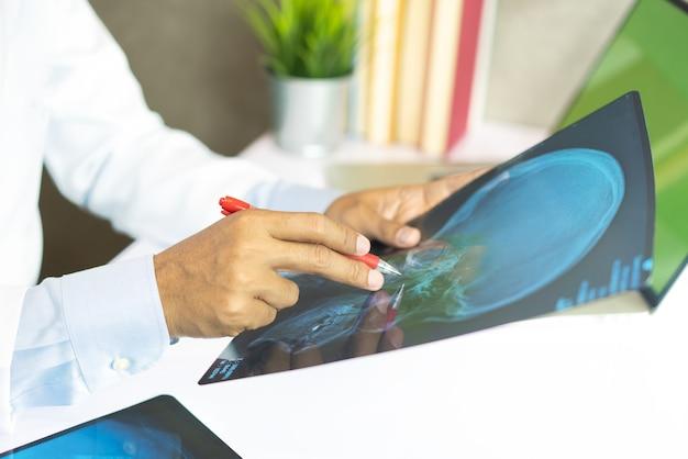 Radiologiedoktor, der am röntgenstrahlfilm des kastens des patienten am krankenhaus überprüft