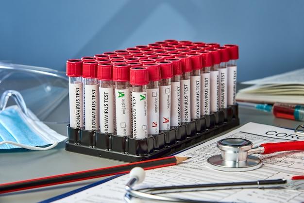 Reagenzgläser mit positiven und negativen blutproben für covid-19 neben dem coronovirus-testformular.