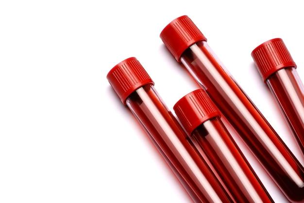 Reagenzgläser mit rotem stopfen isoliert auf weiß